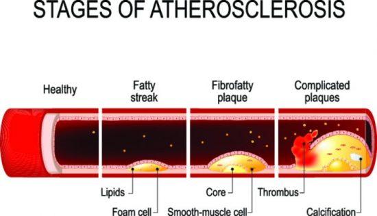 Холестерин и холестерол что это такое