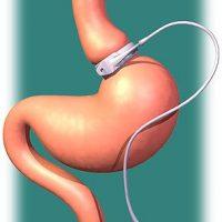 Как уменьшить желудок